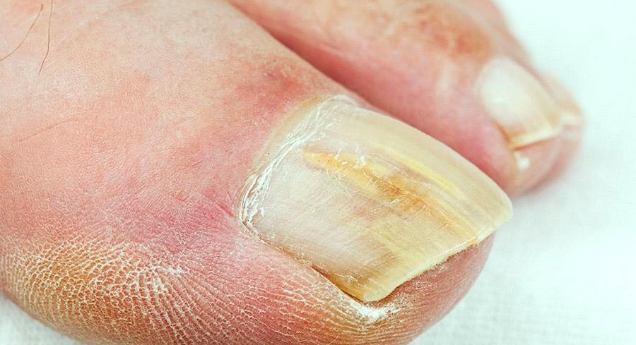 ¿Te falló el manejo para onicomicosis? – Aquí las causas